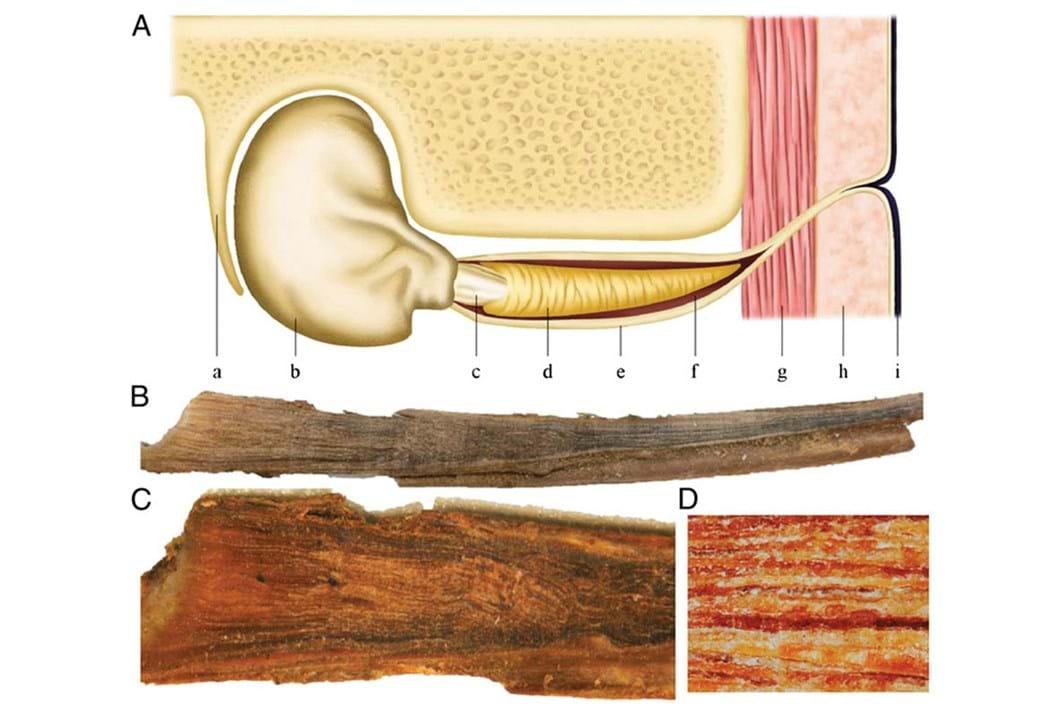 Whale ear wax plug diagram