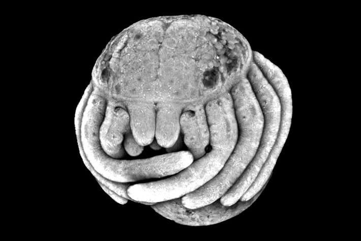 Spider embryo 2016-02-25