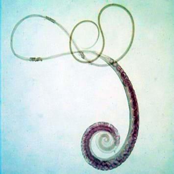 Whipworm Parasite 2015 01 09